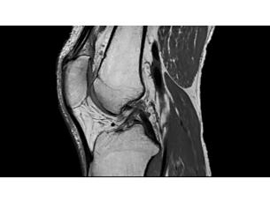 3DMSK VIEW Klinische MR-Anwendung