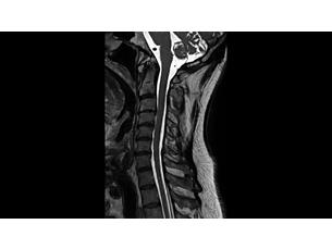 3DSpineVIEW Klinische MR-Anwendung