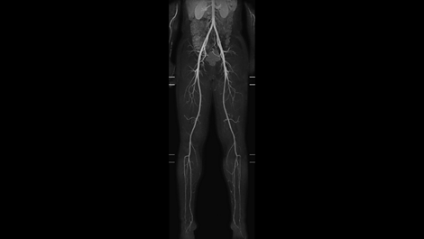 mDIXON XD MultiStation - Vascular MR clinical application