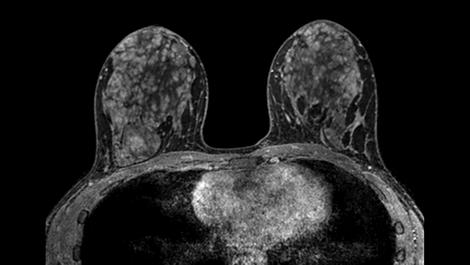 mDIXON XD FFE - Breast MR clinical application
