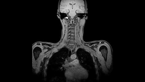 mDIXON XD FFE - HeadNeck MR clinical application