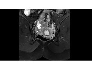 mDIXONXD TSE Klinische MR-Anwendung