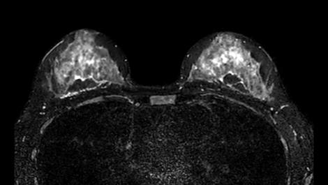 mDIXON XD TSE - Breast MR clinical application