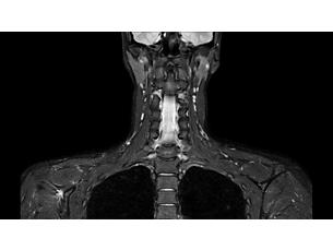 mDIXON XD TSE – HeadNeck MR clinical application