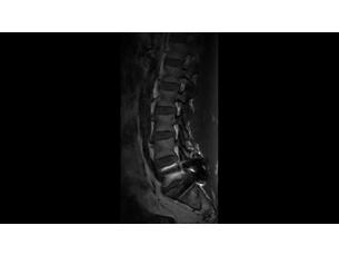 O-MAR Klinische MR-Anwendung