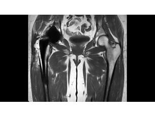 O-MARXD Klinische MR-Anwendung