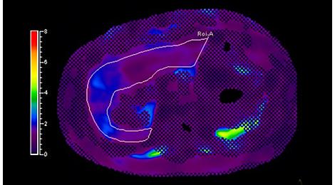 MR Elastography Klinische MR-Anwendung