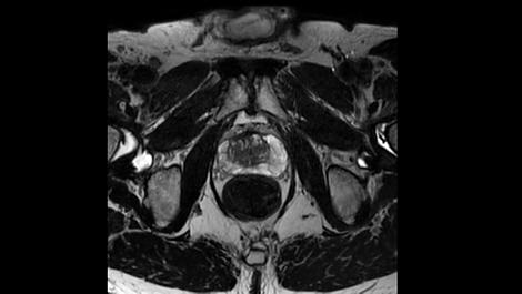3D PelvisVIEW Klinische MR-Anwendung