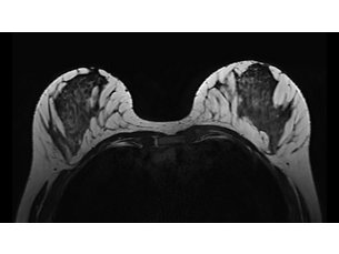 3D BreastVIEW MR clinical application