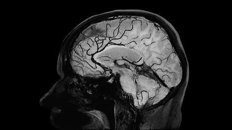 Black-Blood-Bildgebung Klinische MR-Anwendung