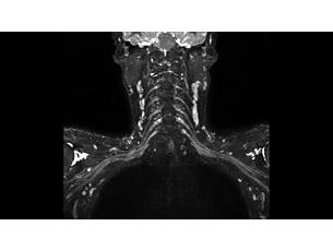 3DNerveVIEW Klinische MR-Anwendung
