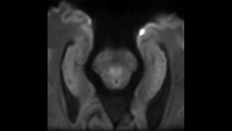 Zoom Diffusion Klinische MR-Anwendung