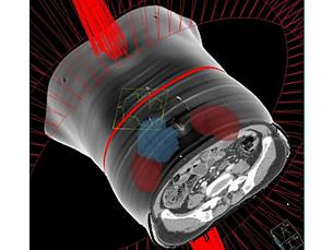 Pinnacle³ La velocità della somministrazione VMAT. L'eccellenza di Pinnacle³.
