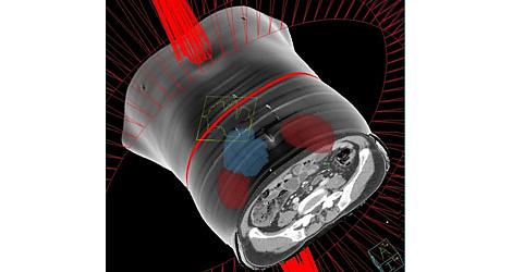 Pinnacle³ Velocidade de entrega VMAT. A excelência do Pinnacle³.