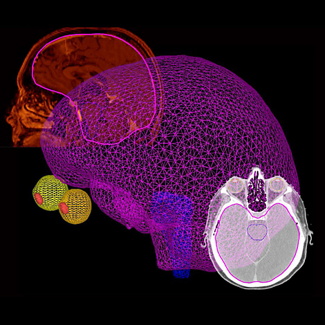 Pinnacle Drag and drop organ modeling enhances workflow