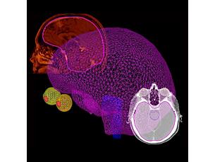 Pinnacle Drag & drop organ modeling enhances workflow