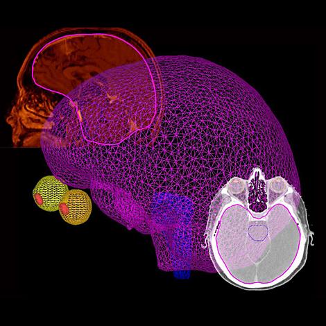 Pinnacle³ Optimisation des processus de travail via la modélisation des organes par glisser-déposer