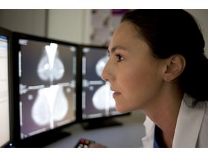 IntelliSpace Estación de trabajo mamaria multimodalidad