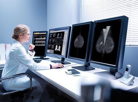 IntelliSpace Station de travail multimodalité dédiée à la mammographie