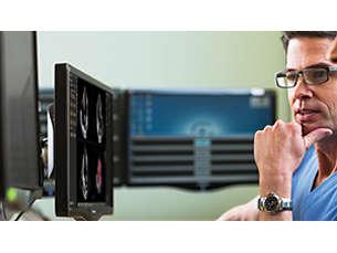 QLAB Software di quantificazione per ecografia cardiovascolare