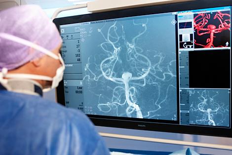 Philips AlluraClarity Interventionelle Röntgensysteme