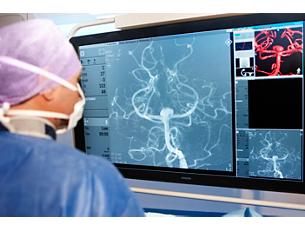 AlluraClarity Système de radiologie interventionnelle à faible dose