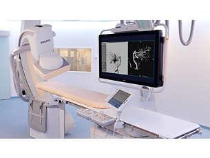 FlexMove Więcej przestrzeni roboczej whybrydowej sali operacyjnej/pracowni interwencyjnej