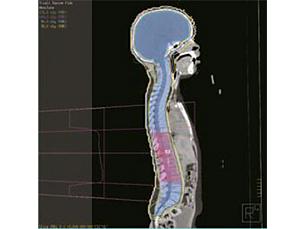 Pinnacle³ Plano de tratamento próton-fóton integrado