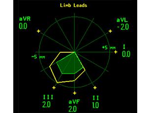 ST Map Monitoreo continuo de segmento ST