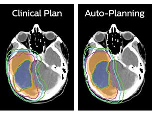 Pinnacle³ Planificación acelerada de IMRT y VMAT
