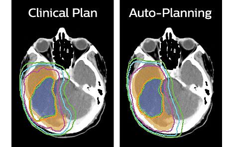 Pinnacle³ Planification IMRT et VMAT accélérée