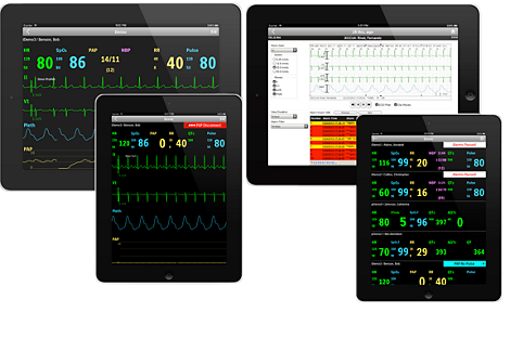 IntelliVue Mobile app for patient monitoring data