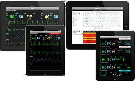 IntelliVue Aplicación móvil para datos de monitoreo del paciente