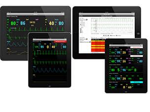 IntelliVue App mobile per i dati del monitoraggio paziente