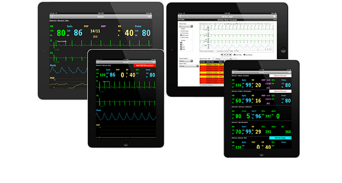 IntelliVue Mobile Caregiver Mobile app for patient monitoring data