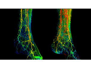 2D Perfusion Perfusion imaging in angiographic interventions