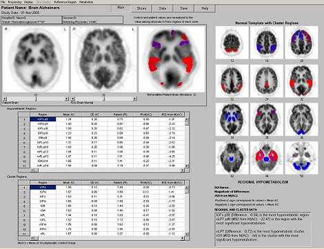 NeuroQ 3.0 Analyse-Tool für PET-Scans
