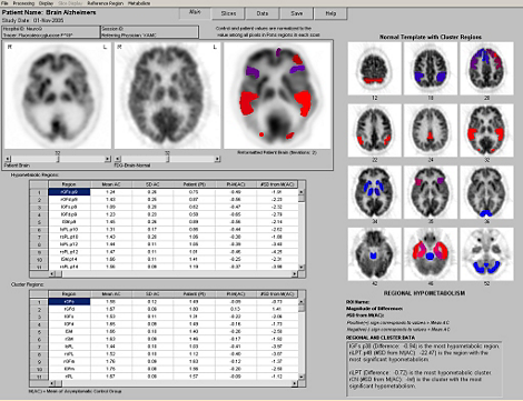 NeuroQ 3.0 Analyse-Tool für PET-Scans