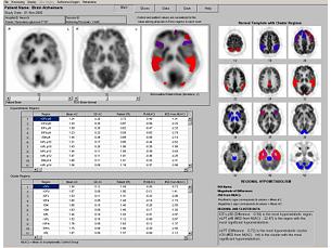 NeuroQ 3.0 Outil d'analyse d'examens TEP