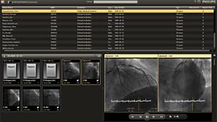 Cardiology Informatics Philips Healthcare
