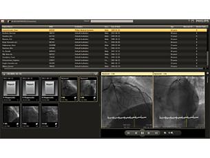 Xcelera visualizador enterprise de cardiología