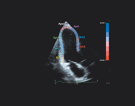 AIUS解剖智能超声 aCMQᴬ⋅ᴵ⋅自动心肌运动定量