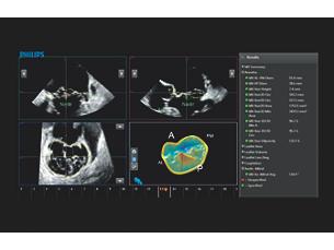 AIUS解剖智能超声 MVNᴬ⋅ᴵ⋅二尖瓣定量导航