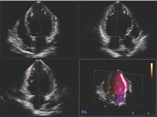AIUS解剖智能超声 HeartModelᴬ⋅ᴵ⋅智能心脏三维定量