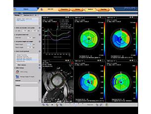 Cardiac Explorer Rozwiązanie usprawniające przebieg badania MR