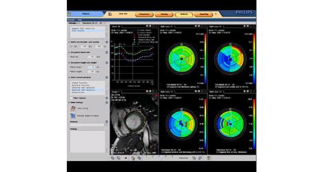 Cardiac Explorer心脏管理器 磁共振工作流程解决方案
