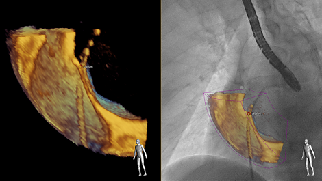 Eco navegador Fusionando los rayos X en vivo y el ecocardiograma en vivo