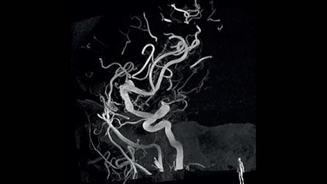 VasoCT Визуализация сосудистого русла за окклюзией