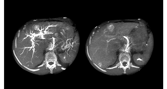 XperCT Dual  Fast, high-resolution cone beam CT during interventions