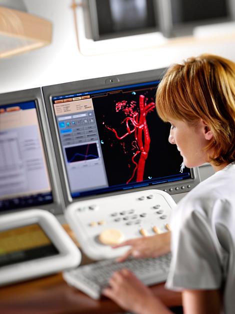 Allura 3D-RA 3D-Darstellung von Blutgefäßen